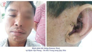 Bệnh nhân hội chứng Ramsay Hunt tại Bệnh viện Phong - Da liễu Trung ương Quy Hoà