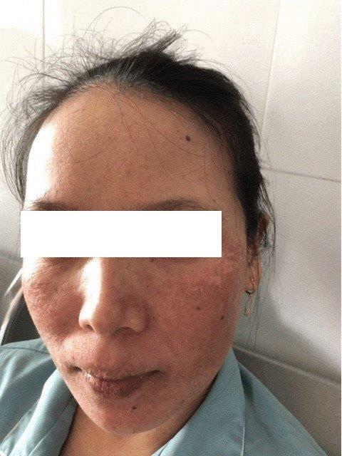 Kết quả bệnh nhân sau điều trị