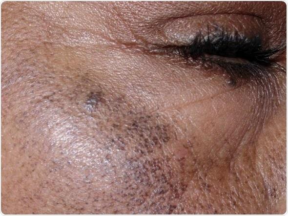 Hình ảnh Ochronosis ở một bệnh nhân nữ