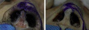 Hình 3. Cơ hạ vách mũi của một lỗ mũi dạng nằm ngang (bên trái) dính vào cuống trong sụn cánh mũi lớn, da tiền đình và da trụ mũi (mũi tên). Cơ hạ vách mũi của một lỗ mũi nằm thẳng đứng (bên phải). Điểm cuối của cơ hạ vách mũi trong loại lỗ mũi thẳng đứng không đi tới chân của cuống trong sụn cánh mũi lớn và da trụ mũi