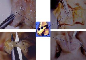 Hình 4. Những cấu trúc hỗ trợ đầu mũi gồm sự dính giữa sụn cánh mũi lớn và sụn cánh mũi trên ngoài (hình trên bên trái), sự dính giữa cuống ngoài sụn cánh mũi lớn và lỗ hổng hình lê (hình trên bên phải), sự dính giữa hai vòm của sụn cánh mũi lớn (hình dưới bên trái), và sự dính giữa cuống trong sụn cánh mũi lớn với đuôi vách ngăn mũi (hình dưới bên phải), dây chằng sụn - trung bì Pitanguy là không thấy ở đây