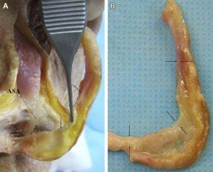 Hình 5. (A, B) Dây chằng sụn - trung bì (mũi tên) đi vào trong mô cơ vòng môi và sụn vách ngăn (phần đi vào trong sụn vách ngăn đã bị chia tách). ASA: góc vách ngăn trước (anterior septal angle)