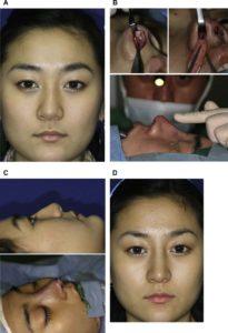 Hình 2. Phản hồi bề mặt liên tục từ kỹ thuật cho phép tinh chỉnh từng mm những thay đổi nhỏ qua từng bước phẫu thuật nâng mũi. (A) Da phủ bên ngoài là rất quan trọng