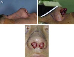 Hình 4. (A) Người nam trẻ tuổi với dáng mũi ngắn và hếch lên. (B) Giải phóng LLC và đưa nó ra trước. (C) Nhìn thẳng mặt bệnh nhân