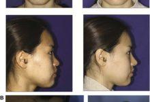 Hình 5. (A) Phụ nữ 23 tuổi, đầu mũi tròn to, 1 năm sau khi dùng SEG ghép tăng cường vách ngăn qua phương pháp lai căng. (B) Bóc tách rộng tạo điều kiện tiếp xúc và khâu mảnh ghép, nhưng vẫn cho phép kiểm soát tinh tế hình dạng mũi với da nguyên vẹn.