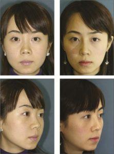 Hình. 6. Nữ 20 tuổi có mũi ngắn và xoay đầu mũi, kết quả sau khi thực hiện quy trình lai căng.
