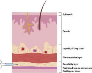 Hình 1. Phủ bên ngoài mũi gồm 4 lớp: lớp mỡ nông, lớp cân mạc nông (SMAS: superficial musculo-aponeurotic system), lớp mỡ sâu và lớp màng sụn hay màng xương. Các mạch máu chính của mũi bên ngoài nằm trong lớp mỡ nông (lớp SMAS). Do đó, để giảm thiểu chấn thương mạch máu, lớp lý tưởng và an toàn cho tiêm filler là lớp mỡ sâu nằm giữa SMAS và màng sụn hoặc màng xương. (Moon HJ. Filler trong phẫu thuật nâng mũi. Phẫu thuật Plast lâm sàng 2016; 43 (1): 307 Vang 17;.)