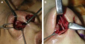 Hình 1. (A) Lớp trung gian của mũi châu Á đòi hỏi phải tiếp xúc mở để sửa chữa trực tiếp và hỗ trợ giải phẫu những chỗ còn yếu hoặc thiếu. (B) Phương pháp lai mang lại khả năng tiếp cận và tiếp cận kỹ thuật không giới hạn, có thể so sánh với phương pháp mở.