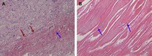 Hình 10. Kiểm tra mô học của TPFL được cấy ghép sau 7 tháng phẫu thuật. Hematoxylin-eosin nhuộm ở 100 (A) và 200 (B) cho thấy mô xơ dày đặc với sự hình thành mạch máu (mũi tên đỏ) và thâm nhiễm nguyên bào sợi (mũi tên màu xanh)