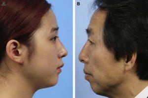 Hình 11. Sự bất thường của sống mũi sau khi nâng mũi lần đầu (A) và sửa lại (B) nâng mũi bằng TPFL.