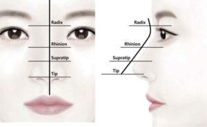 Hình 2. Bác sĩ phẫu thuật đánh dấu đường giữa mũi trên sống mũi trước khi làm thủ thuật. Đường giữa phải được đánh dấu chính xác để hạn chế các biến chứng như không đối xứng. Bước tiếp theo là đánh dấu điểm của vị trí gốc mũi lý tưởng. Ở người châu Á, đây là nếp mí trên sụn mi. Quy trình tiêm filler được thực hiện bằng cách chia mũi thành 4 phần: gốc mũi, khớp gian mũi, trên đầu mũi và đầu mũi. Các phương pháp tiêm khác nhau nên được sử dụng vì mỗi phần có độ dày mô dưới da khác nhau, cũng như các đặc điểm và độ bền khác nhau của các cấu trúc nâng đỡ. (Từ Moon HJ. Sử dụng filler trong phẫu thuật nâng mũi. Phẫu thuật Plast lâm sàng 2016; 43 (1): 307 Vang17.)