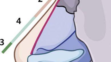 Hình 3. Chất làm đầy thường được tiêm theo thứ tự: gốc mũi, khớp gian mũi, đầu mũi và vùng trên đầu mũi. (Chuyển thể từ Moon HJ. Sử dụng chất làm đầy trong phẫu thuật nâng mũi. Phẫu thuật Plast lâm sàng 2016; 43 (1): 307.)