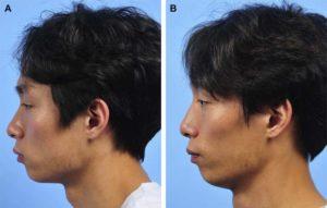 Hình 3. Hình ảnh khuôn mặt của người nam 24 tuổi, đã phẫu thuật nâng mũi bằng MegaDerm. Nâng mũi được thực hiện thông qua phương pháp nội soi. (A) Ảnh nghiên trước phẫu thuật. (B) Ảnh nghiên sau 6 tháng phẫu thuật. Nâng mũi đúng cách đã được thực hiện sau phẫu thuật.