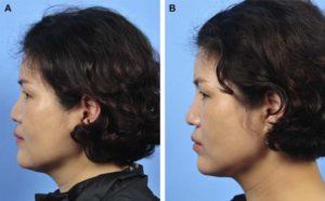 Hình 4. Hình ảnh khuôn mặt của người nữ 46 tuổi, đã sửa lại mũi với nâng mũi bằng MegaDerm. Đã đặt Silicon cách đây 10 năm và bị đùn ra ở mũi. Gỡ bỏ Silicone và thay thế bằng MegaDerm. Đoạn xương mũi và đầu mũi được ghép kéo dài thêm vách ngăn thông qua mổ mũi hở. (A) Ảnh nghiên trước phẫu thuật. (B) Ảnh nghiên sau 6 tháng phẫu thuật. Nâng mũi đúng cách đã được thực hiện sau phẫu thuật.