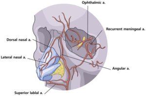 Hình 5. Động mạch mũi, như tên gọi của nó, chạy dọc theo sống mũi. Nó là một mạch máu được cố định bỡi các mô xung quanh, và đầu kim có thể được đưa vào mạch máu nếu nó được đưa vào song song với mạch máu. Động mạch mũi thông nối với các nhánh của động mạch mặt nên thuyên tắc lan rộng các mạch máu được biểu hiện như hoại tử da theo vùng cung cấp máu. Nó cũng là một nhánh của động mạch mắt, do đó filler chui vào cũng có thể gây ra các triệu chứng về mắt. Động mạch mũi bên là một nhánh từ động mạch mặt và nó chạy dọc theo rãnh mũi má. (Chuyển thể từ Moon HJ. Sử dụng filler trong phẫu thuật nâng mũi. Phẫu thuật Plast lâm sàng 2016; 43 (1): 307 17.)
