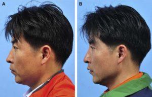 Hình 5. Hình ảnh khuôn mặt của người nam 43 tuổi, đã sửa lại mũi với nâng mũi bằng MegaDerm. Loại chỗ gồ ở sống mũi, và chỉnh xương mũi thông qua phương pháp nọi soi. (A) Ảnh nghiên trước phẫu thuật. (B) Ảnh nghiên sau 6 tháng phẫu thuật. Nâng mũi đúng cách đã được thực hiện sau phẫu thuật.