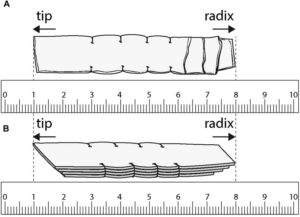 Hình 7. Hình minh họa của TPFL 4 lớp sau khi khâu bằng chỉ 5-0 polydioxanone. (A) Nhìn thẳng và (B) nhìn nghiên của TPFL. (Dong-Su Jang, Seoul, Illustrator y tế, Hàn Quốc.)