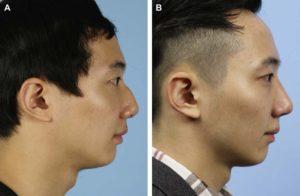 Hình 8. Hình ảnh khuôn mặt của người nam đã phẫu thuật nâng mũi bằng TPFL. (A) Ảnh nghiên trước phẫu thuật. (B) Ảnh nghiên sau 6 tháng phẫu thuật. Nâng mũi đúng cách đã được thực hiện sau phẫu thuật.