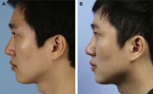 Hình 9. Hình ảnh khuôn mặt của người nam đã phẫu thuật sửa lại nâng mũi bằng TPFL. (A) Ảnh nghiên trước phẫu thuật. (B) Ảnh nghiên sau 6 tháng phẫu thuật. Nâng mũi đúng cách đã được thực hiện sau phẫu thuật.