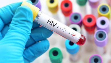 Hình ảnh mô tả xét nghiệm HIV dương tính